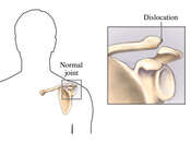 Clavicle-Acromion Dislocation