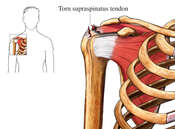 Rotator Cuff Repair - Injury