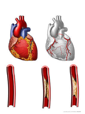 Anatomy of the Heart with Potential Blockage Sites in Coronary Arteries