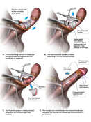Surgical Excision of Peyronie Plaque
