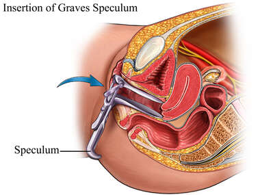 The Graves Speculum