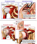 Impingement of the Supraspinatus Muscle with Open and Arthroscopic Surgical Repairs