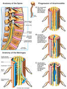 Arachnoiditis of the Lumbo-sacral Spine