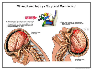 Closed Head Traumatic Brain Injury (TBI) - Coup and Contrecoup