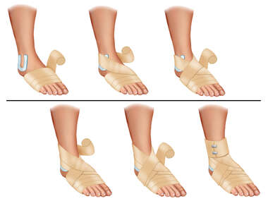 Ace Bandage Appication Sprained Ankle Medical Illustration