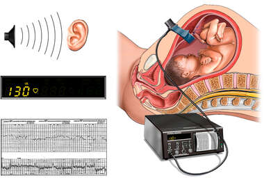 External Electronic Fetal Heart Rate Monitoring With 3 Types of Output