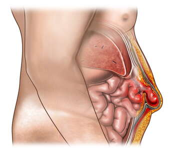 Abdominal Wall (Umbilical) Hernia