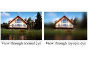 View Through Normal vs View Through Nearsighted Eye