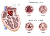Aortic Valve, open and closed, healthy and stenosed