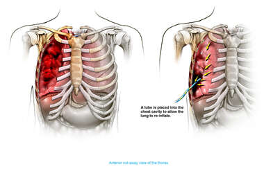 Pneumothorax with Tube Placement
