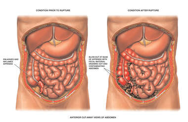 Acute Appendicitis wth Ruptured Appendix