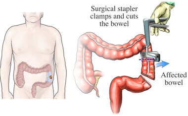 Staple Ressection of Cancerous Bowel