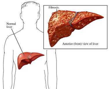 Fibrosis of the Liver