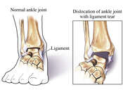 Ankle Dislocation