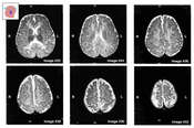 Axial MRI Views of the Brain