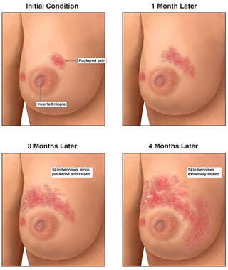 Progression of Inflammatory Breast Cancer of Right Breast
