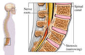 Spinal Stenosis