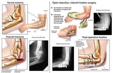 Left Elbow Fractures with Surgical Fixation