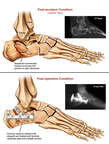 Right Calcaneus Fractures and Surgical Fixation