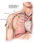 Placement of Subclavian Central Line