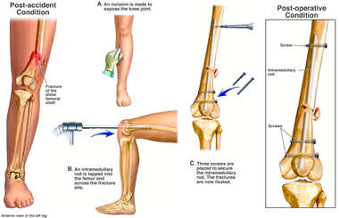 Surgical Fixation of Distal Left Femur Fracture