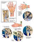 Additional Wrist Injuries and Surgical Repairs