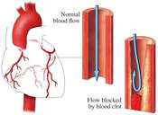 Heart Attack (Myocardial Infarction) Due to Blood Clots
