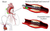 Removal of Balloon/stent
