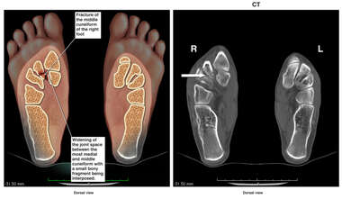 Right Foot Fracture