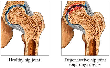 Degenerative Hip vs. Normal Hip