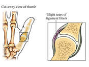 Mild Sprain of Ulnar Collateral Ligament
