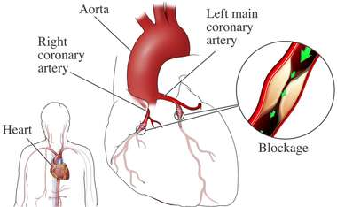 Coronary Blockage