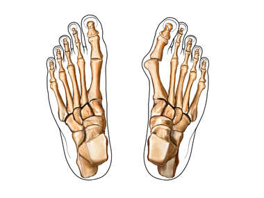 Bunion: Dorsal (Top) View