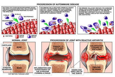 Auto-immune Disease with Formation of Reactive Arthritis