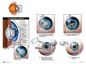 Corneal Scarring and Cataract with Surgical Keratoplasty and Lens Replacement